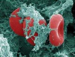 Pengobatan Alternatif Yang Baik Mengobati Kanker Darah